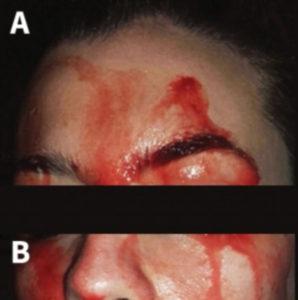 women sweats from face